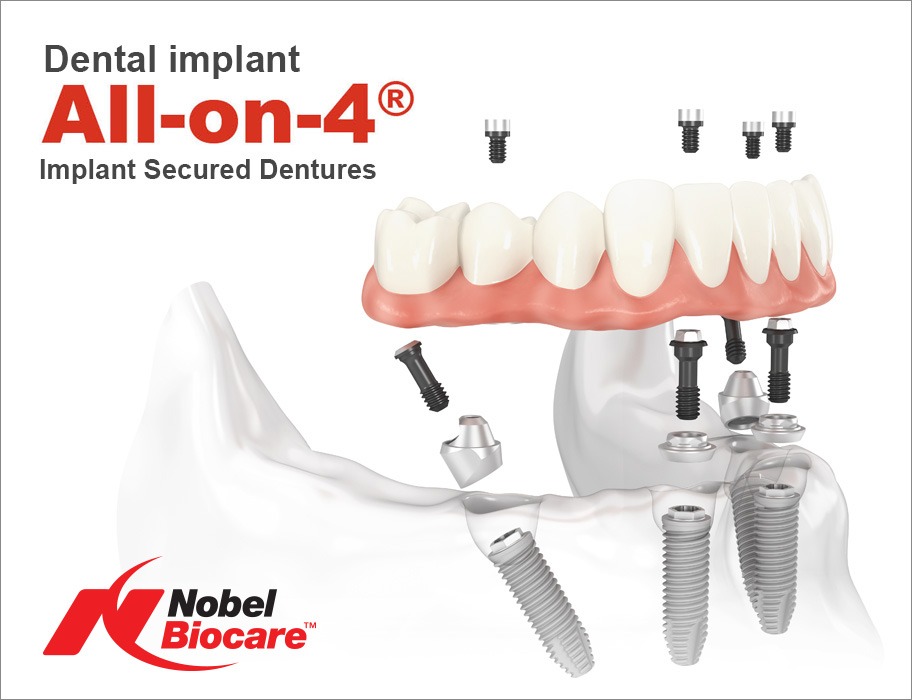 all-on-4 Implant Secured Dentures