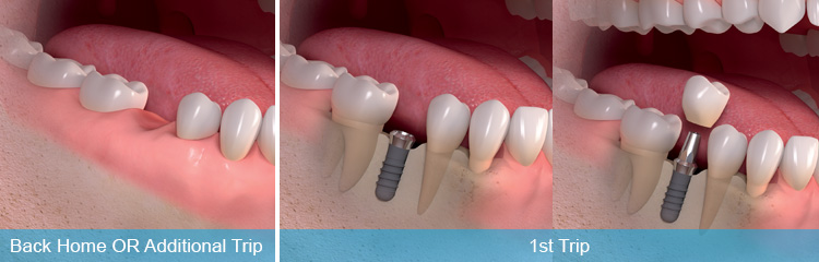 immediate-loaded-dental-implants