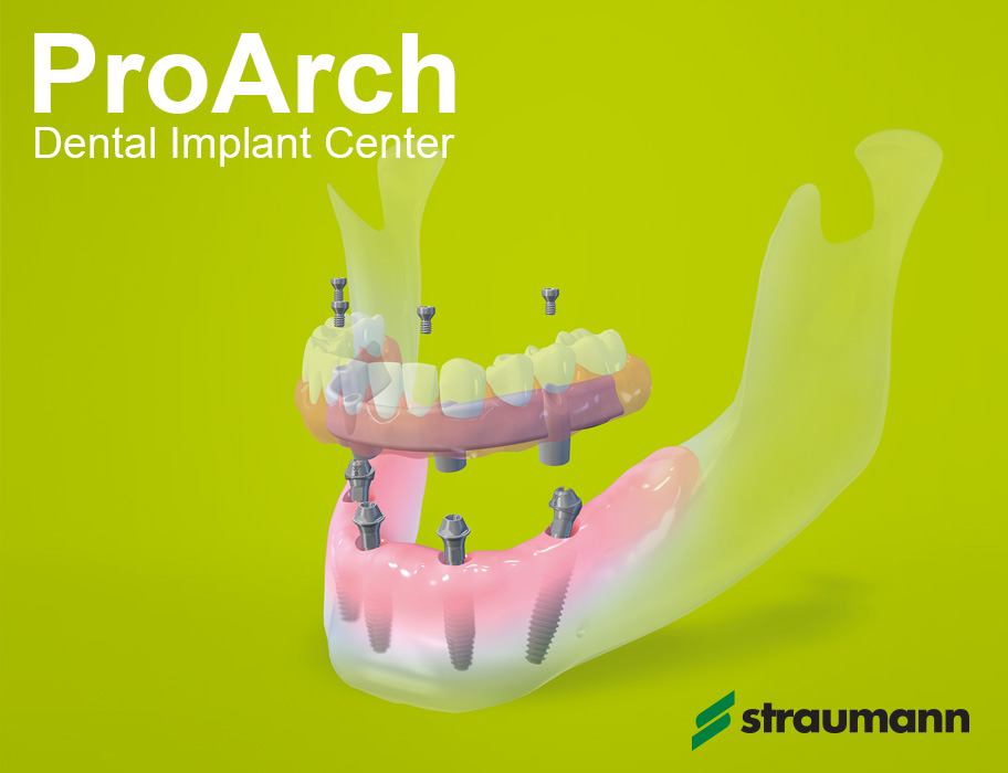 Leading Full Arch Dental Implant Center