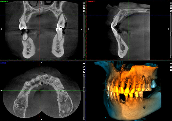 Dental Implant CT Scan