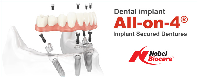 All-on-4 dental implants | Immediate Function Implants Hybrid Bridge
