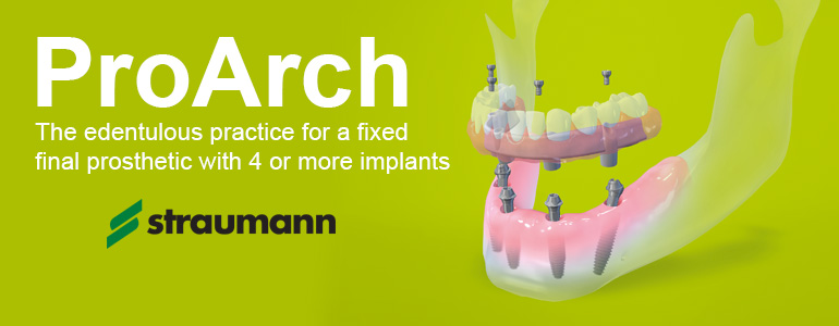 ProArch dental implants