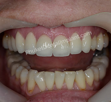 case-implant-denture1