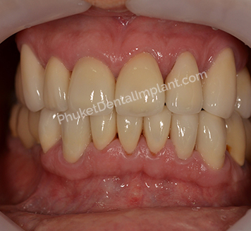 case-implant-denture2