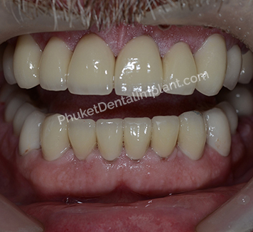case-implant-denture3