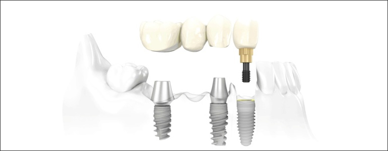 dental-implant-bridges