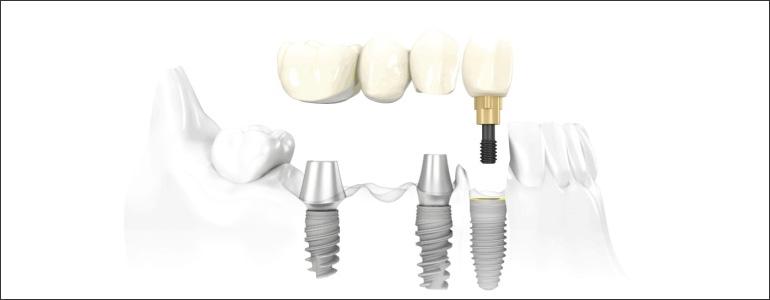dental-implant-bridges