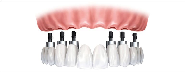 dental implant full bridges