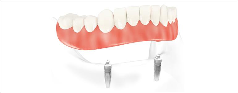 dental implant overdentures