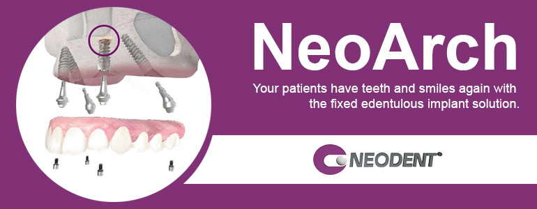 NeoArch dental implants