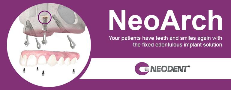 NeoArch dental implants