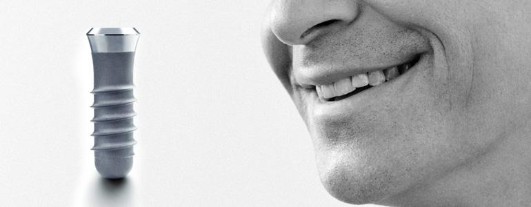 dental-implants-treatment