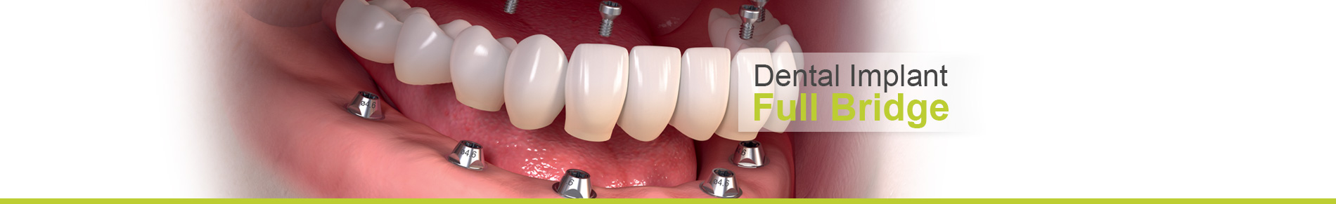 Phuket Dental Implant