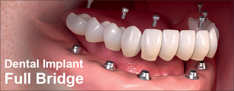 Dental implant full bridge