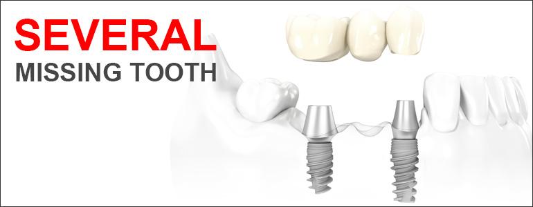Several Missing teeth
