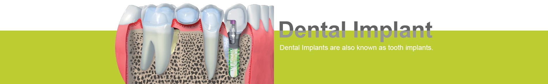 Phuket Dental Implant