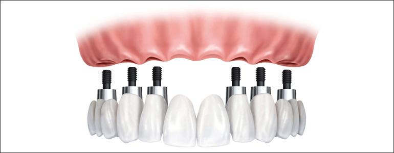 dental implant full bridges