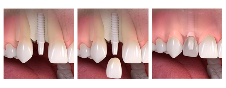 oral implant