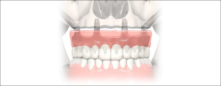 zygoma dental implants