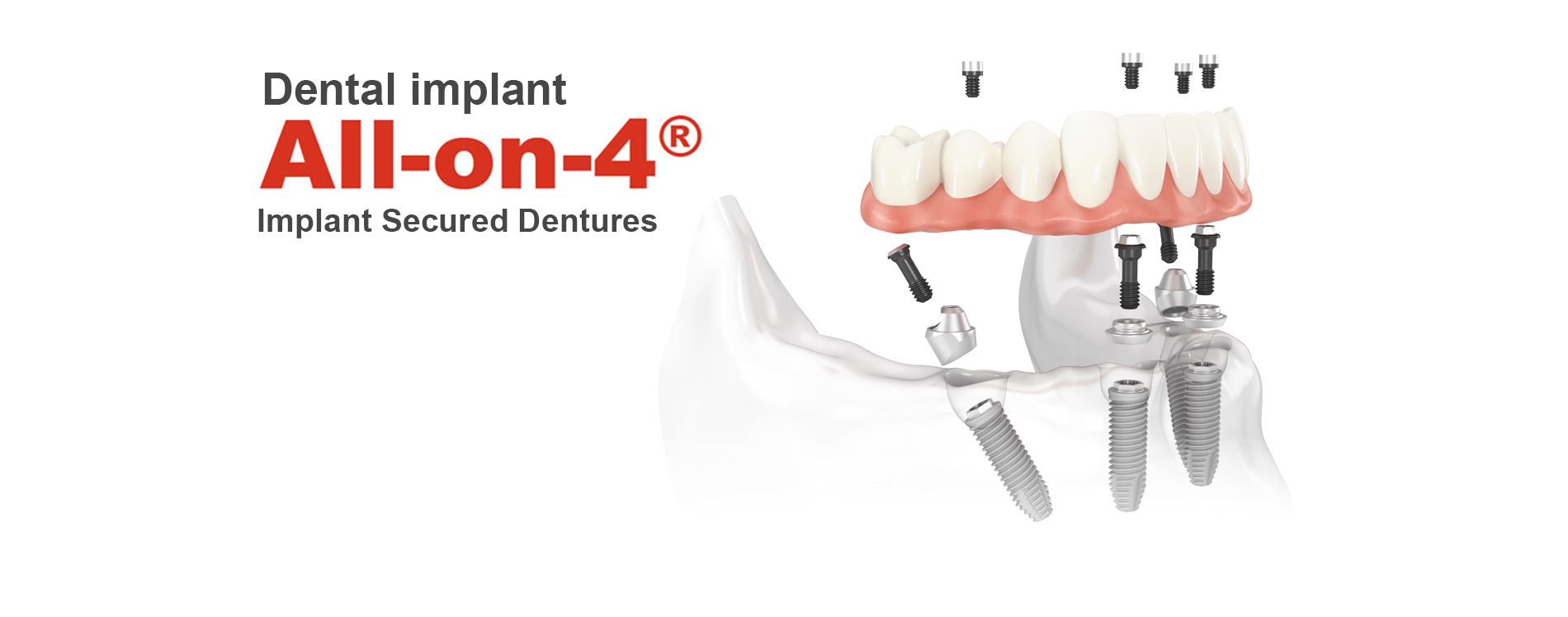 Dental implant all-on-4