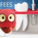 Dental-Implant-Fees